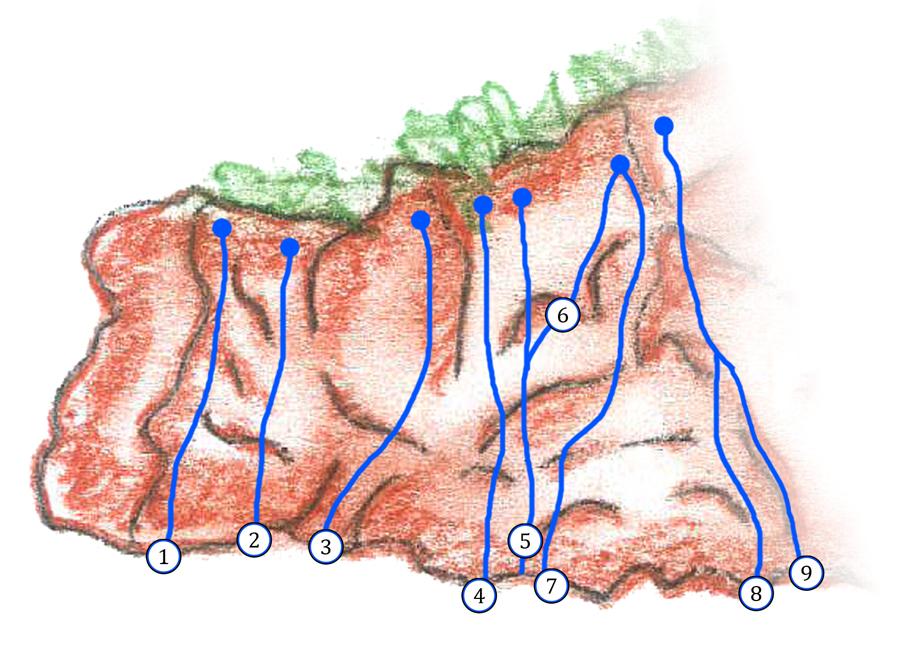 Candalla Bassa | Settore sinistro | Versante Apuano